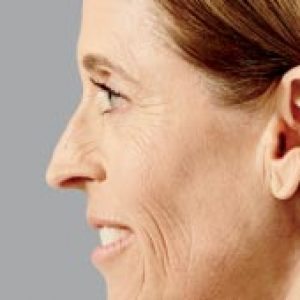 Woman's facial profile after face lift