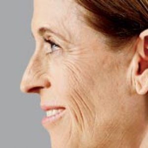 Woman's facial profile before v face lift