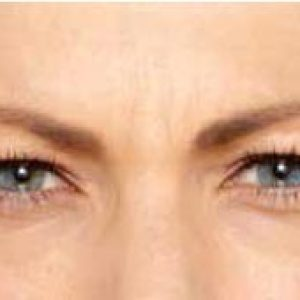 woman's brow line before botox in south jersey