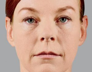 Woman's face before v lift