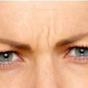 woman's brow line after botox in south jersey