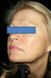 Woman's profile after vlift