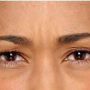Woman's brow after botox
