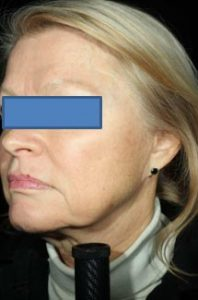 Woman's profile before vlift