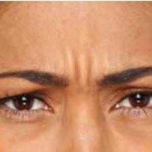 Woman's brow before botox