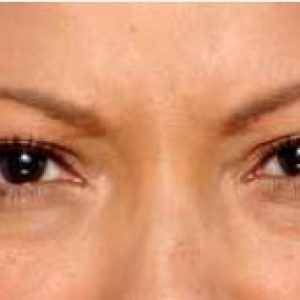 Woman's brow after botox south jersey