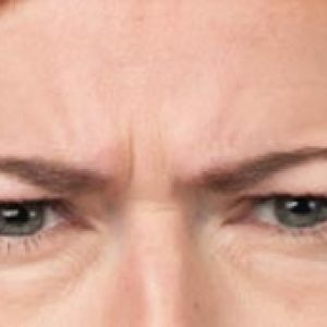 Woman's brow before medical botox in south jersey