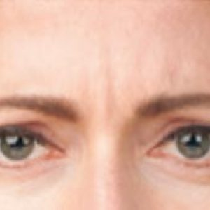 Woman's brow after medical botox