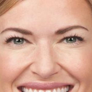 Close up of a woman's face after a botox spa