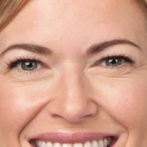 Close up of a woman's face before a botox spa