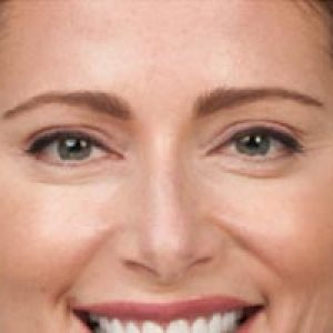 Close up of a woman's face after botox in south jersey