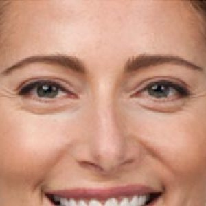Close up of a woman's face before botox in south jersey