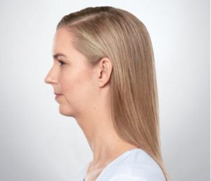 Blonde woman's profile after kybella treatment