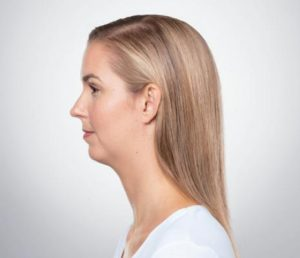 Blonde woman's profile before kybella treatment