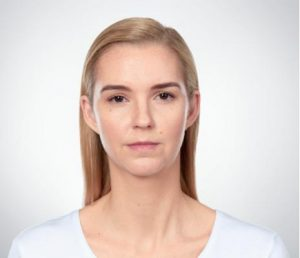 Blonde woman's face after kybella treatment
