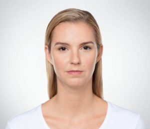 Blonde woman's face before kybella treatment