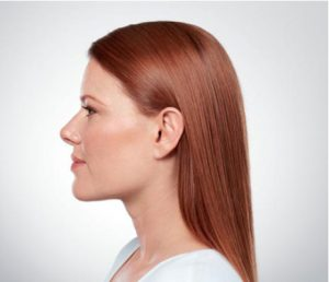 young woman's profile after kybella