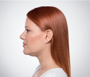 young woman's profile before kybella
