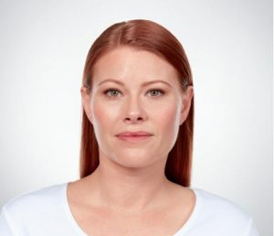 young woman's face after kybella
