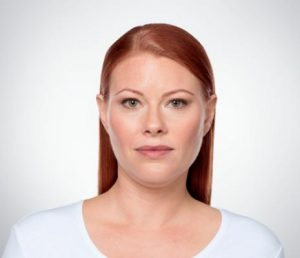 young woman's face before kybella