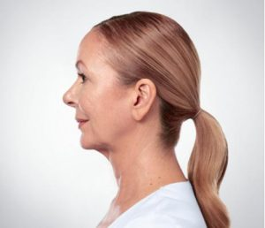 Woman's profile after kybella