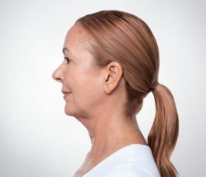 Woman's profile before kybella