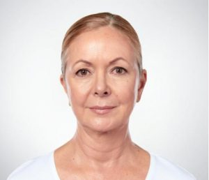 Woman's face after kybella