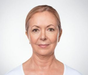 Woman's face before kybella