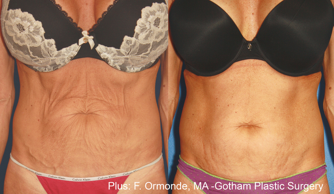 preview-gallery-fo_plus_1a_8weeks_1to2weeksapart_60mj_cutoff43_10to12mineachtreatment