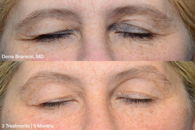 preview-gallery2-denis-branson_thermismooth-face-eyes_3-treatments-9-months_patient-1-copy