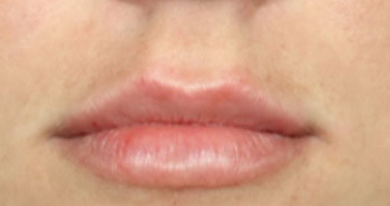 lip-1-after