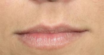 lip-1-before
