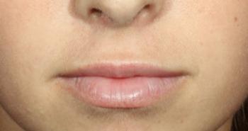 lips-2-after-o170my0fd2xmef8qw26pyguxuxdg4ugh4r65un5rqy