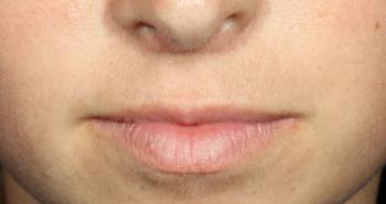 lips-2-before-o170n0txxl1hd94nflelny5bn2zjrxro554mah1l8a