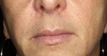 lips-3-after-o170n4laox6mnoz6tn13xx760mh0mq6lhnqk7kw0je