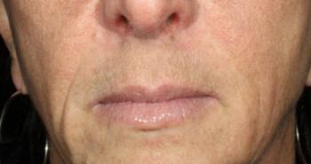 lips-3-before-o170n8cng9bry4tq7onm7w90e5yhhiliu6ci4oqfui